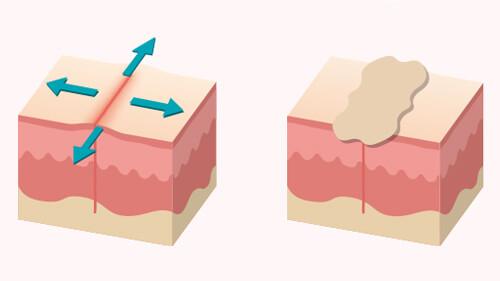 帝王切開後 傷跡テープを伸展刺激の抑制効果で選ぶ