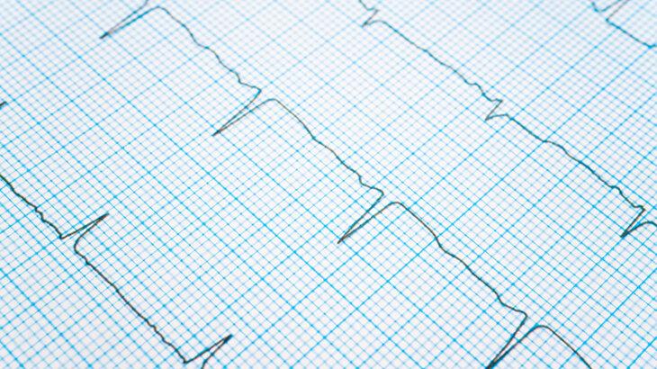 血圧計で不整脈マークが出たら?頻繁に出る場合の注意点