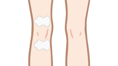 関節への低周波治療器パッドの貼り方